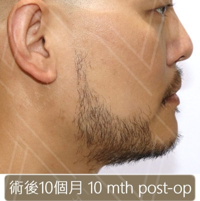 植鬍手術10個月後