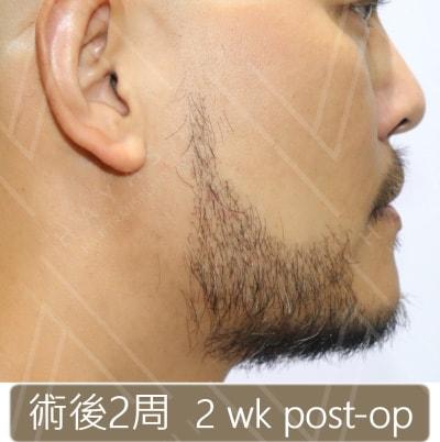 植鬍手術2周後