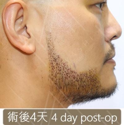 植鬍手術4天後