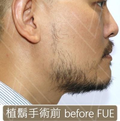 植鬍手術前