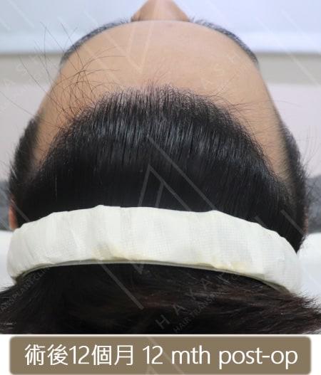 M型禿植髮 術後12個月