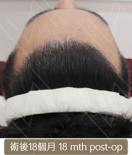 M型禿植髮 術後18個月