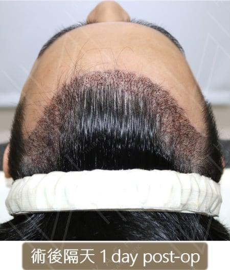 M型禿植髮 術後隔天