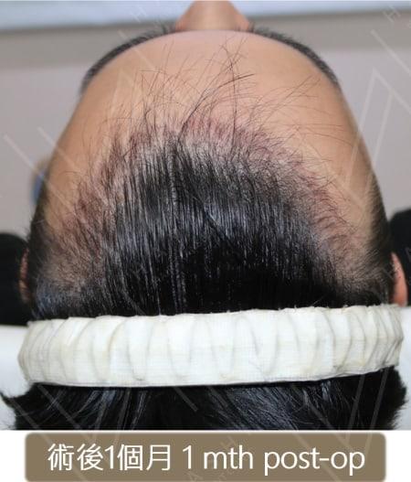 M型禿植髮 術後1個月