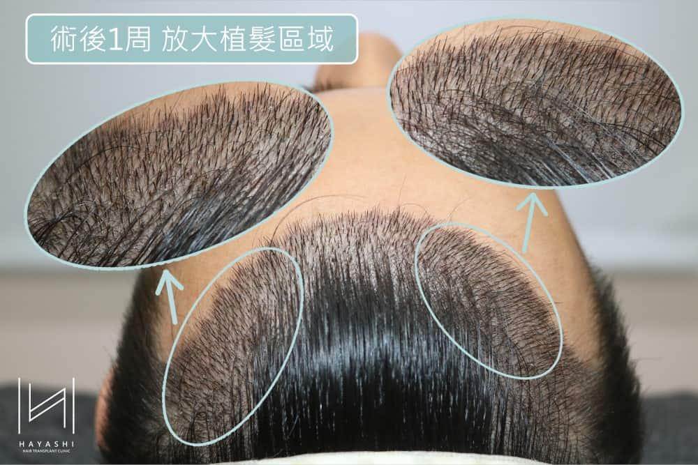 植髮區域放大圖 植髮心得