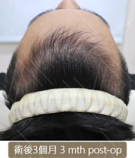 M型禿植髮 術後3個月