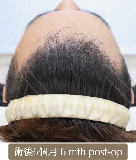 M型禿植髮 術後6個月