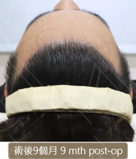 M型禿植髮 術後9個月