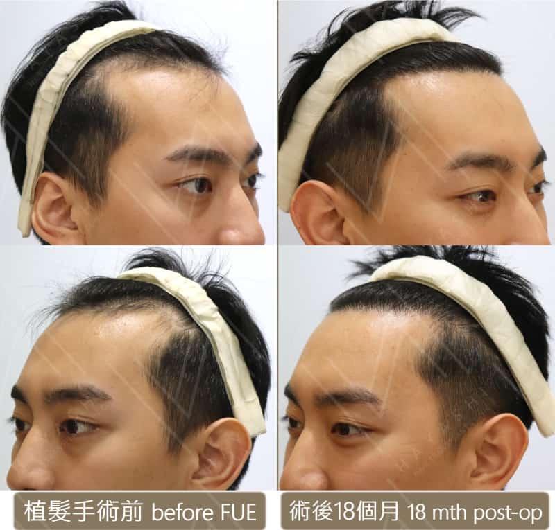 植髮手術前後 m型禿