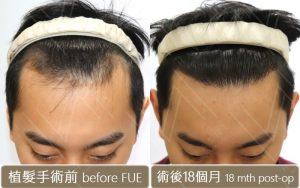 植髮前 植髮後18個月 M型禿植髮